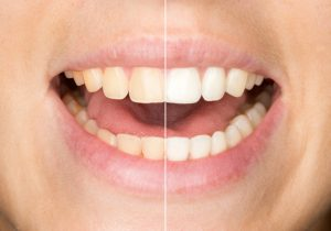 Need to boost your confidence? Teeth whitening in Independence can help!