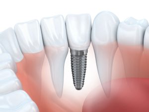 dental implants independence