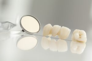 Dental crowns in Cincinnati support damaged teeth.